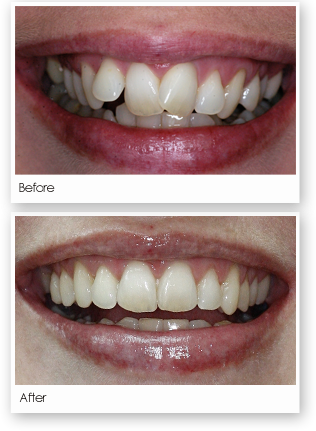Invisalign Treatment Image