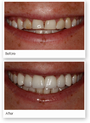 Veneers Treatment Image