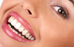 porcelain-veneers-palm-harbor-fl